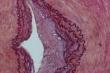 histologie Evg gefaess 1 det